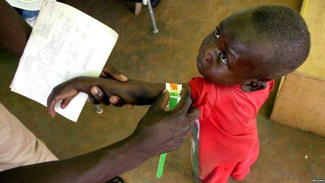 8.5 millions d'enfants congolais vivent dans la malnutrition photo prise par Erick Ks